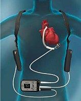 HeartMate III (Фото: ЧТК)